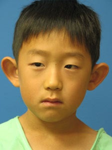 Otoplasty Ear Surgery - Boy before 818049