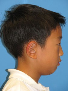 Otoplasty Ear Surgery - Boy 818049