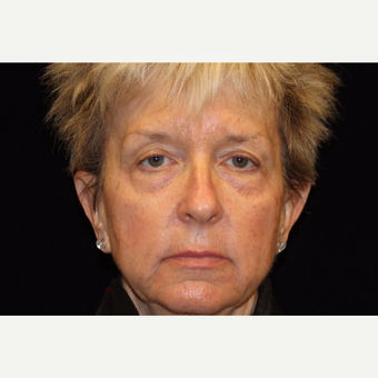55-64 year old woman treated with Liquid Facelift before 3502656