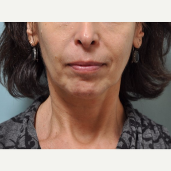 55-64 year old woman treated with Voluma before 3447546