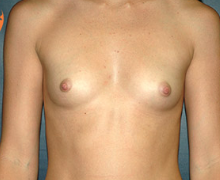 Breast Implants before 3545112