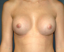 Breast Implants after 3545112