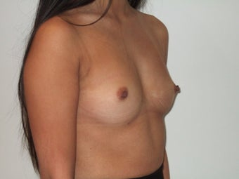 24-30 year old woman treated with Breast Implants before 2369381