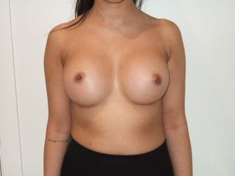 24-30 year old woman treated with Breast Implants 2369381