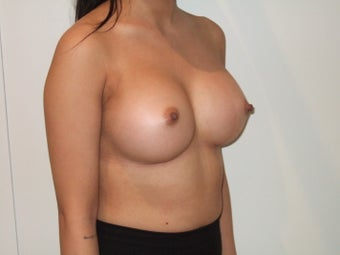 24-30 year old woman treated with Breast Implants after 2369381
