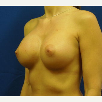 35-44 year old woman treated with Breast Augmentation after 3333105