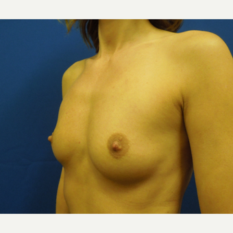 35-44 year old woman treated with Breast Augmentation before 3333105