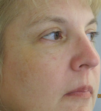 C02 laser treatment after 1025084