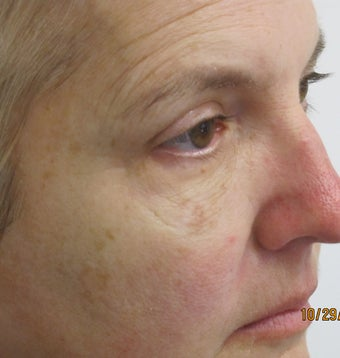 C02 laser treatment before 1025084