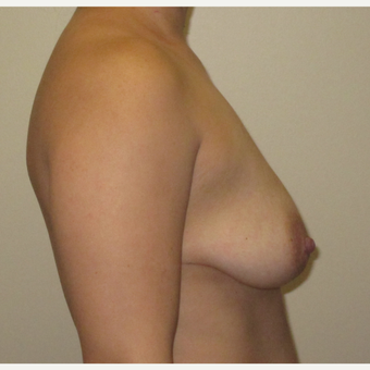 25-34 year old woman treated with Breast Augmentation before 3423797