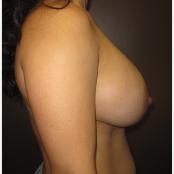 25-34 year old woman treated with Breast Augmentation after 3423797