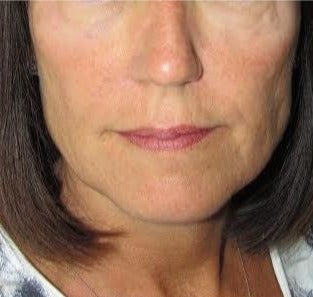 45-54 year old woman treated with Liquid Facelift after 2975082