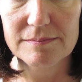 45-54 year old woman treated with Liquid Facelift before 2975082
