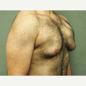 25-34 year old man treated with Male Breast Reduction before 3617074