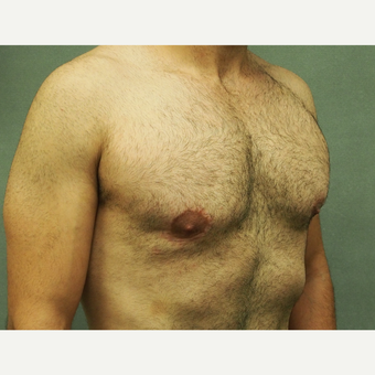 25-34 year old man treated with Male Breast Reduction after 3617074