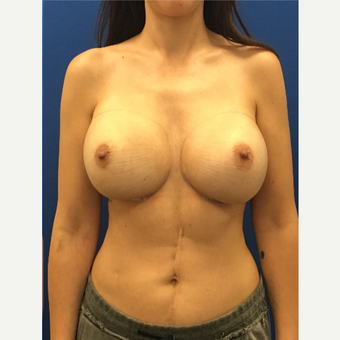 35-44 year old woman treated with Breast Implants after 3475819