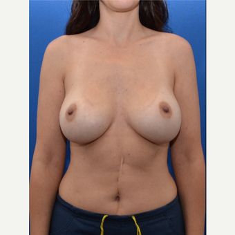 35-44 year old woman treated with Breast Implants before 3475819