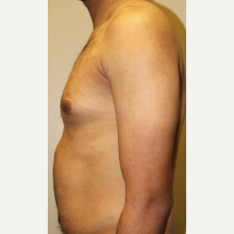 35-44 year old man treated with Male Breast Reduction before 3215442