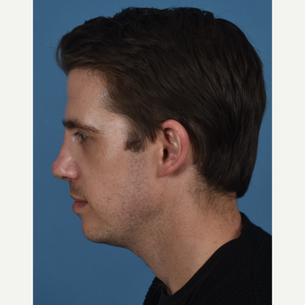 25-34 year old man treated with Revision Rhinoplasty after 3437384