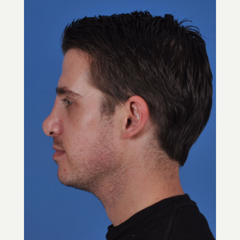 25-34 year old man treated with Revision Rhinoplasty before 3437384