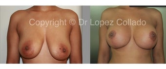 BREAST LIFT before 1195066