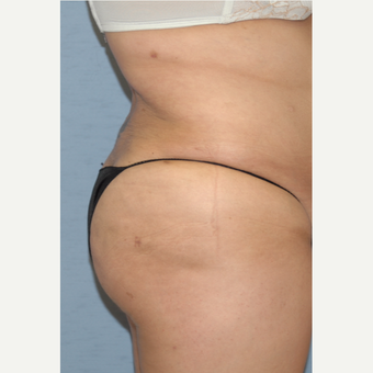25-34 year old woman treated with Liposculpture after 3108826