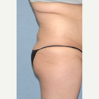 25-34 year old woman treated with Liposculpture before 3108826