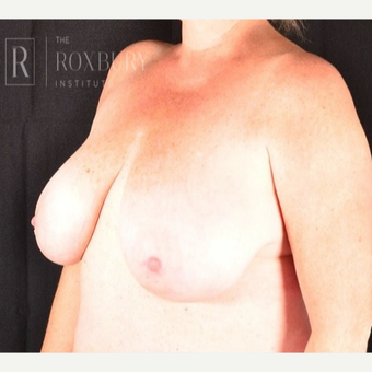 35-44 year old woman treated with Breast Lift before 3844301