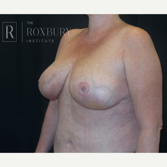 35-44 year old woman treated with Breast Lift after 3844301