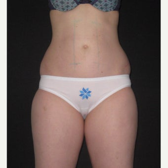 25-34 year old woman treated with CoolSculpting. Abdomen, flanks and inner thighs before 2218494