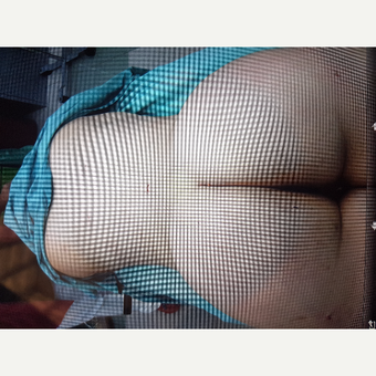 18-24 year old woman treated with Brazilian Butt Lift after 3836541