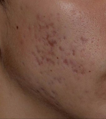 17 or under year old man treated with PicoSure Focus Lens for Acne before 2939732
