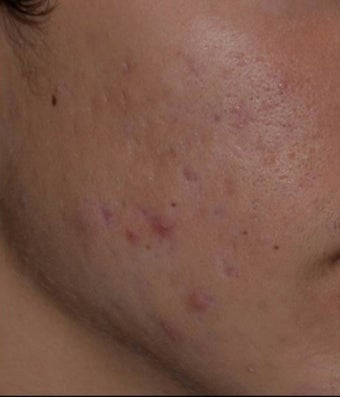 17 or under year old man treated with PicoSure Focus Lens for Acne after 2939732