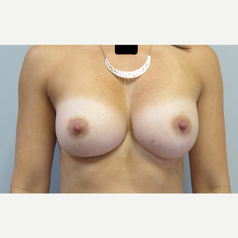 35-44 year old woman treated with Breast Augmentation after 3185751