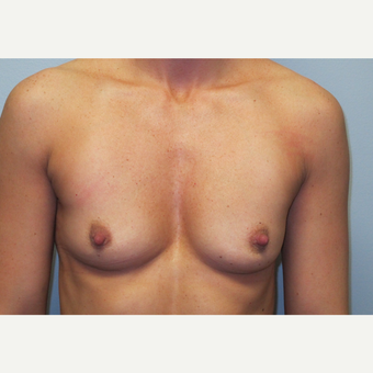 35-44 year old woman treated with Breast Augmentation before 3185751