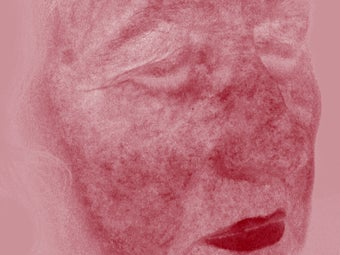 Rosacea treated with IPL treatments