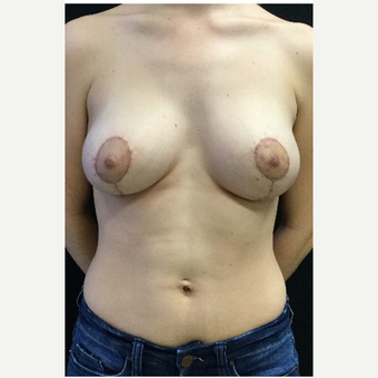 18-24 year old woman treated with Breast Lift with Implants after 3219321
