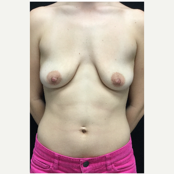 18-24 year old woman treated with Breast Lift with Implants before 3219321