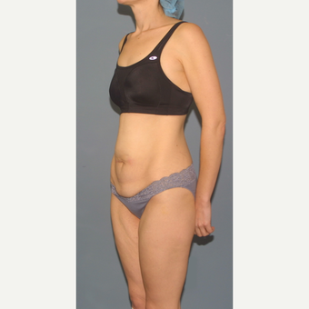 25-34 year old woman treated with Tummy Tuck before 3563693