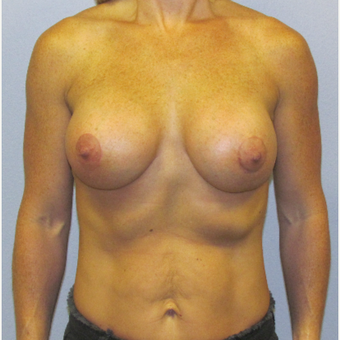 35-44 year old woman treated with Breast Lift with Implants after 3762271