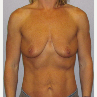 35-44 year old woman treated with Breast Lift with Implants before 3762271
