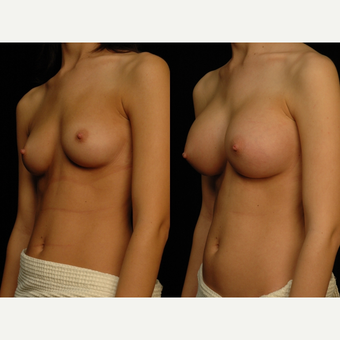 18-24 year old woman treated with Breast Augmentation after 3658611