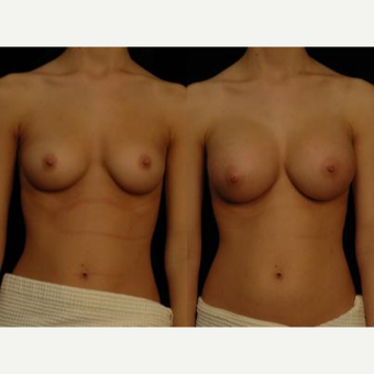 18-24 year old woman treated with Breast Augmentation before 3658611