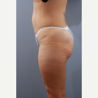 35-44 year old woman treated with Tummy Tuck before 3590141