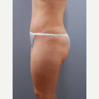 35-44 year old woman treated with Tummy Tuck after 3590141