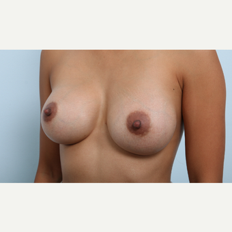 Breast Augmentation after 3459814
