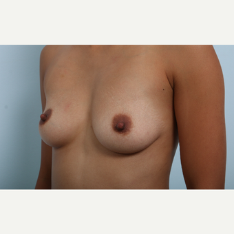 Breast Augmentation before 3459814