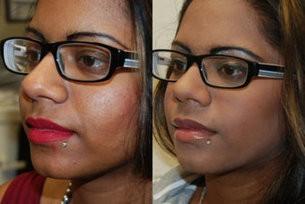 Silikon-1000 lip augmentation. before 1414640