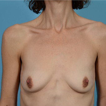 45-54 year old woman treated with Breast Augmentation/Peri-Areolar Incision before 3089477