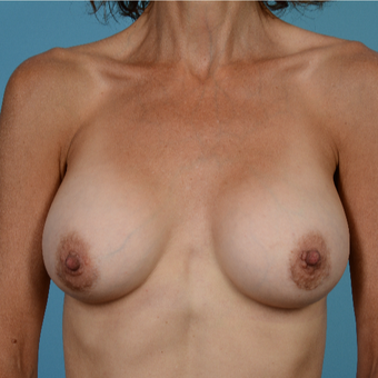 45-54 year old woman treated with Breast Augmentation/Peri-Areolar Incision after 3089477